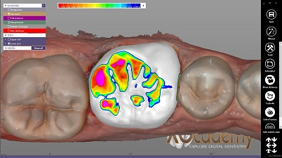WMW – Single Crown – Natural Tooth – BioCopy