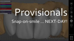 2018-09-25 16_02_56-Weekly Webinar Digital Dentistry 2018-09-13.pptx - PowerPoint
